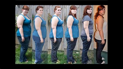 extreme weight loss picture 2