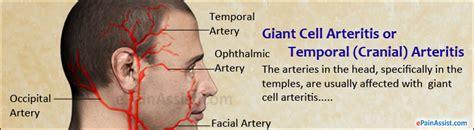 arthritis joint pain picture 9