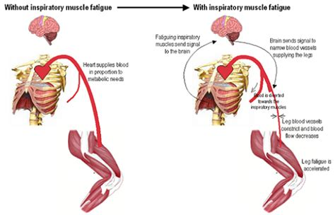 fatigue symptoms muscle picture 2
