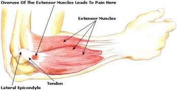 cortisone cause joint pain picture 14