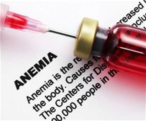 can hypothyroidism cause anemia picture 17