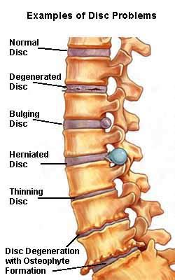 lumbar facet joint diseases picture 5