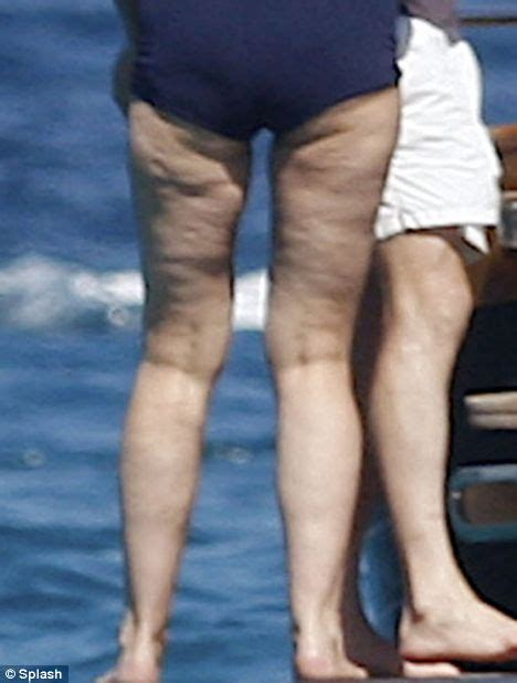 cellulite thighs picture 7