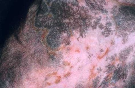 canine skin lesions picture 5
