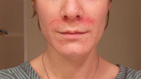 fungal skin rash picture 1