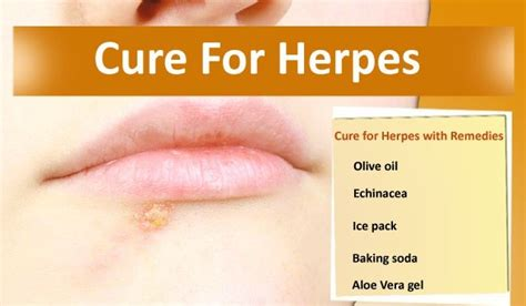 cure for herpes picture 1