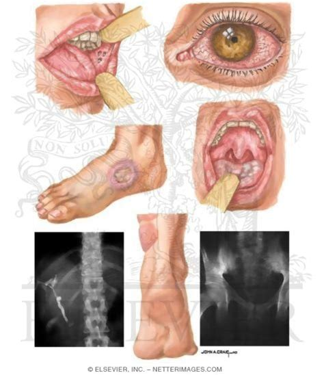 pictures inflammatory bowel disease picture 15