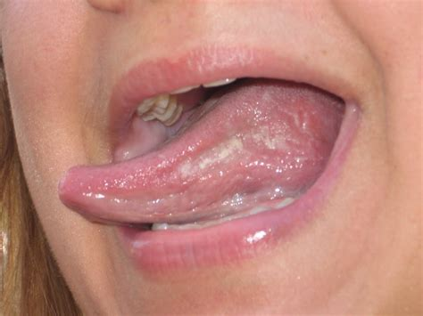 Autoimmune disease causing numbness roof of mouth swelling picture 15