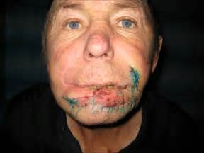 cigarette smoking affect on skin picture 10
