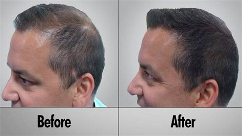 male testosterone therapy and hair loss picture 10