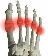 metatarsal phalangeal joint injury picture 11