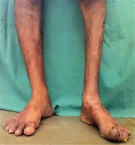 leg muscle atrophy picture 2