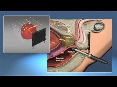 prostate milking procedure picture 11