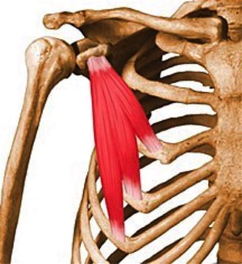 do torn attachments of the pectoralis muscle need picture 14