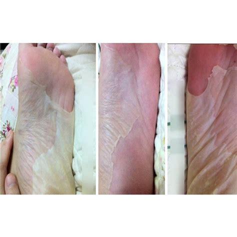 foot exfoliator picture 7