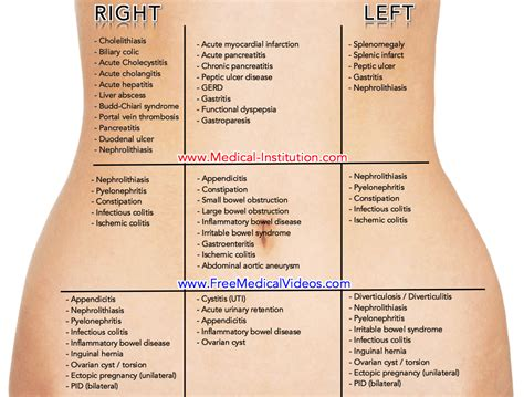 lower left intestinal pain picture 10