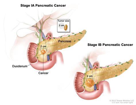 advanced colon cancer picture 10
