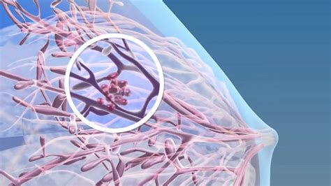 3d breast cancer animation picture 1