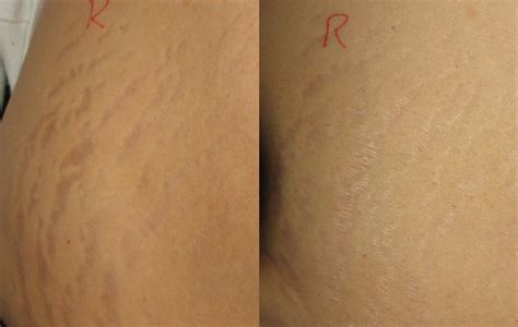 stretch mark removal in san diego picture 1