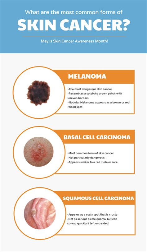 skin cancer warning signs picture 7