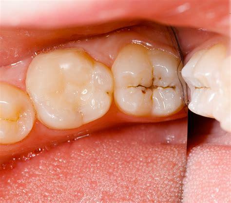 cavaties teeth picture 11