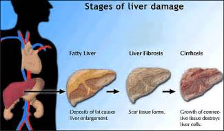liver problems indigestion picture 9