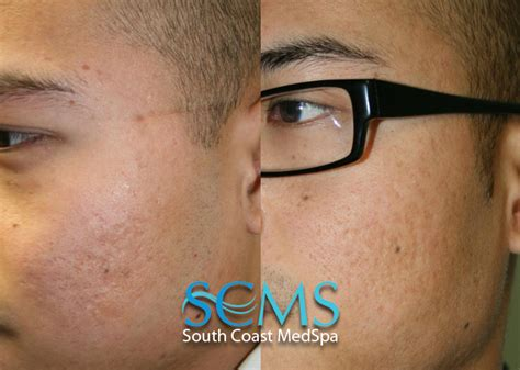 acne scar lazer surgery picture 11
