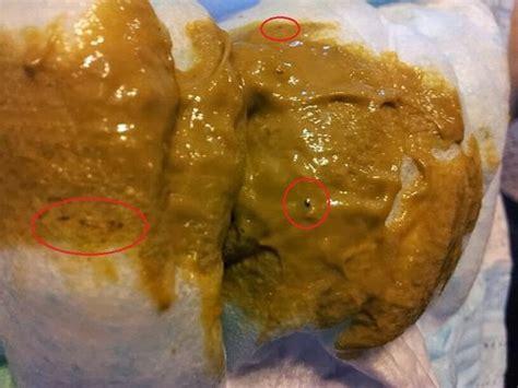 alimentum & bowel picture 10