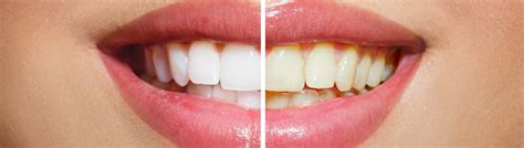 tooth whitening california picture 7
