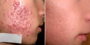 how long course of antibiotic acne before try picture 6