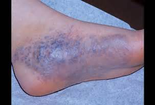 foot skin disease picture 1