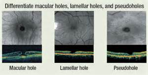 holistic supplements for epiretinal membrane picture 10