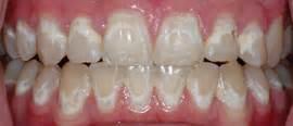 white teeth miami picture 5