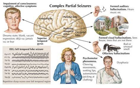 natral cures colon cleanse picture 11