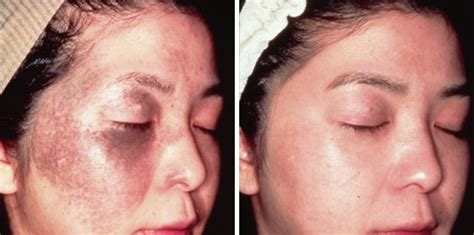 acne treatment as seen on tv picture 9