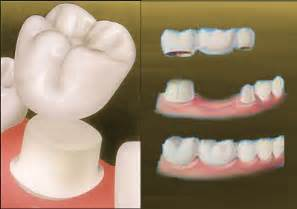 crown for teeth picture 15