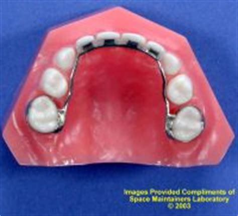 false teeth permanent picture 13