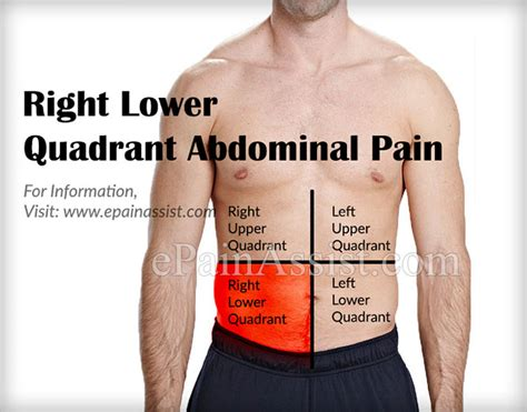 lower right quadrant pain urination bladder picture 9