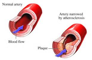 high cholesterol solutions picture 9