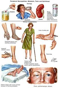 natural remedies for diabetic foot pain picture 9