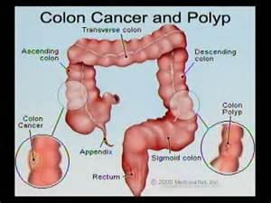 colon screening picture 2