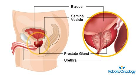 what does va pay for prostate cancer picture 7