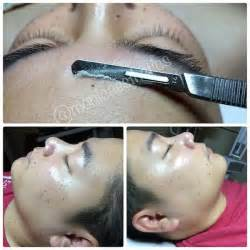 before and after pictures of dermaplaning picture 3