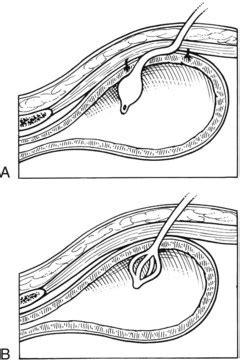 bladder pexy picture 5