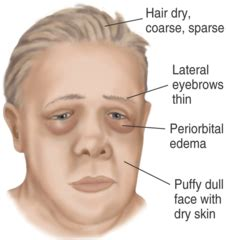skin symptoms of adrenal disorders picture 7