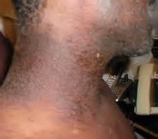 does eczema darken skin picture 7