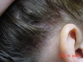 yeast on the scalp picture 2