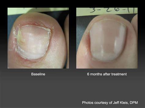 laser toenail treatment louisiana picture 7