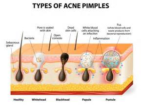 why does acuzine work to clear acne picture 11