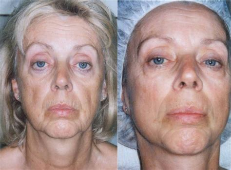 anti aging facial picture 1